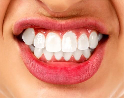 Enseñar los dientes con carillas composite