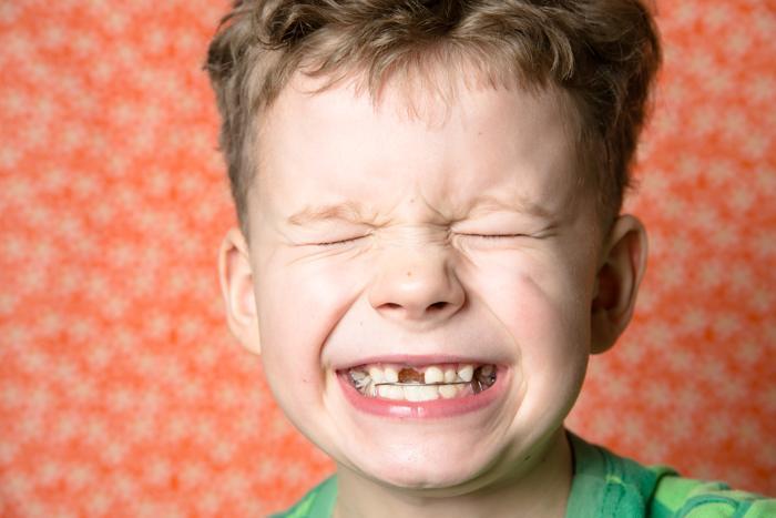¿Se deben arrancar los dientes de leche que se mueven?
